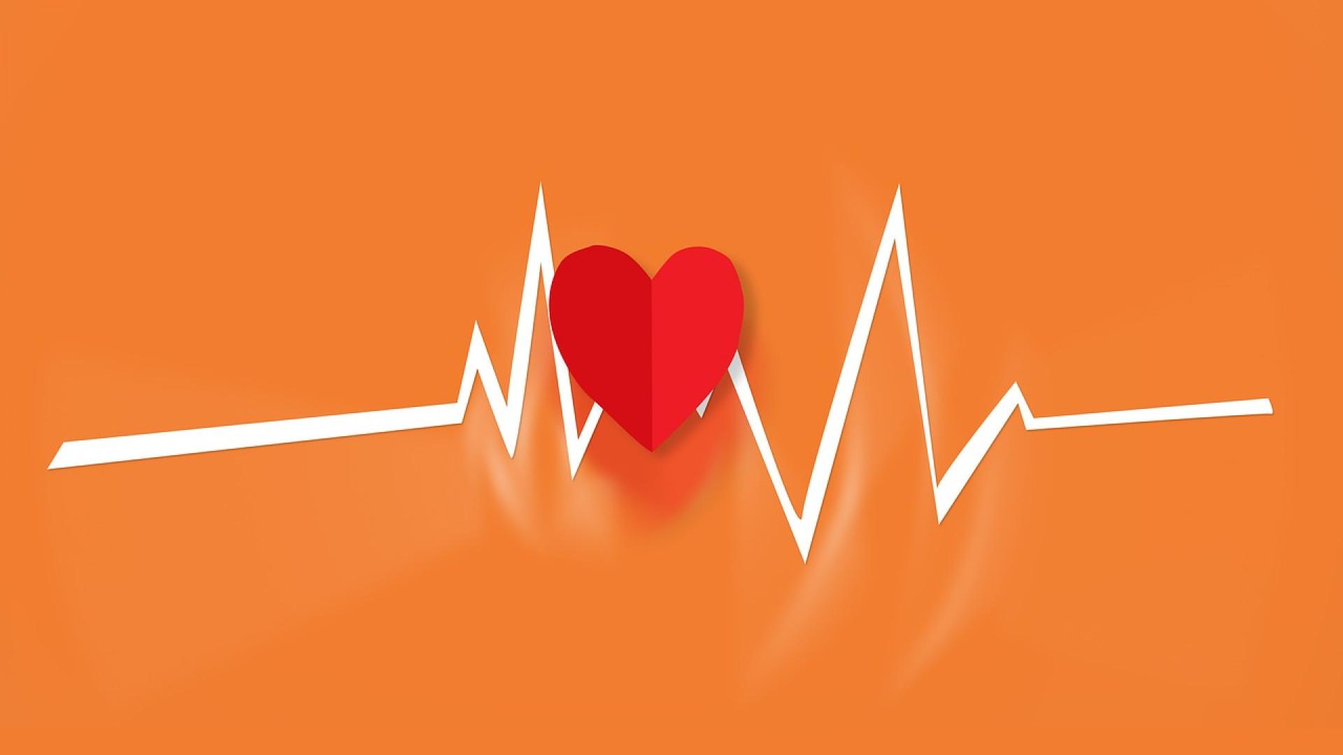 Certains établissements devront s'équiper d'un défibrillateur