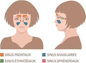 Ça fait mal sous vos yeux? Ce sont les symptômes de la sinusite