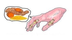 L' allergie et l'arthrite peuvent également causer de la douleur dans la dent!
